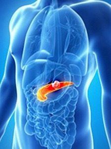 реактивный панкреатит симптомы и лечение