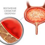 Признаки цистита у женщин и его лечение
