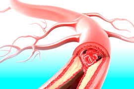 атеросклероз артерий нижних конечностей