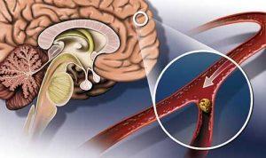 атеросклероз сосудов головного мозга лечение