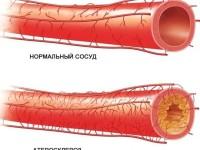 Атеросклероз сосудов нижних конечностей, его симптомы и методы лечения