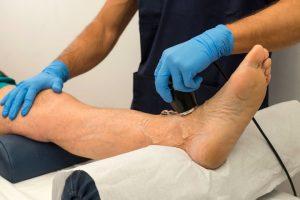 лечение атеросклероза сосудов нижних конечностей лечение препараты