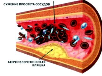 виды атеросклероза