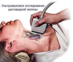 диагностика гипертиреоза