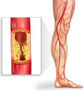 холестерин липопротеидов высокой плотности