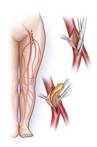 лечение облитерирующего атеросклероза нижних конечностей