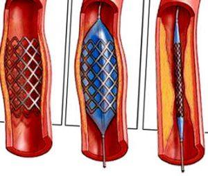 лечение облитерирующего атеросклероза артерий нижних конечностей