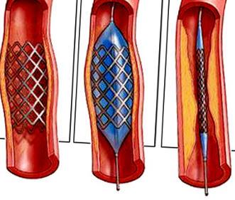 шунтирование артерий