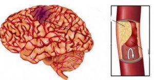 церебральный атеросклероз что это такое