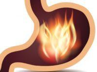 Жжение в желудке: причины, но не изжога