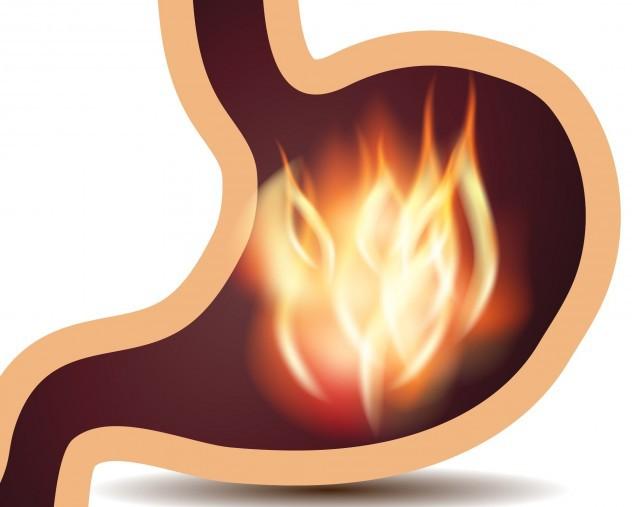 жжение в желудке причины но не изжога