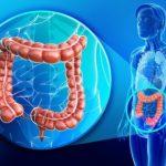 Колит кишечника — симптомы и лечение у взрослых