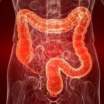 Хронический колит кишечника — что это такое, симптомы и лечение?