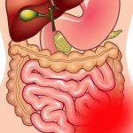 Колит — что это такое, симптомы и лечение колита кишечника