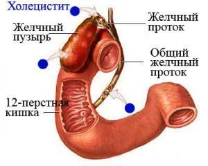 признаки острого холецистита