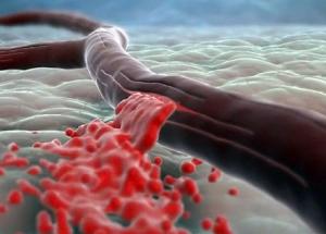 кровотечение из вены