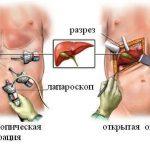 Лечение жкб хронический калькулезный холецистит