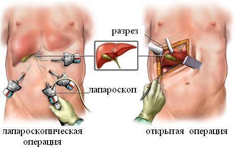 жкб хронический калькулезный холецистит лечение